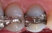 Gold Tooth Replacement Dana Point - Replacement of amalgam alloy 01