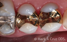 Gold Tooth Replacement Dana Point - Replacement of amalgam alloy 02