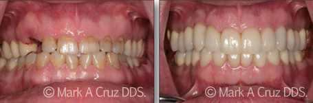 Cosmetic Dentistry Dana Point - Cosmetic Dentistry 01