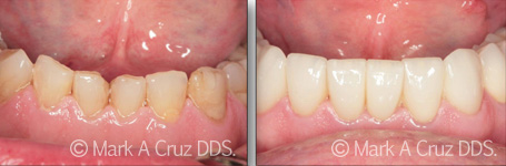 Cosmetic Dentistry Dana Point - Cosmetic Dentistry 05