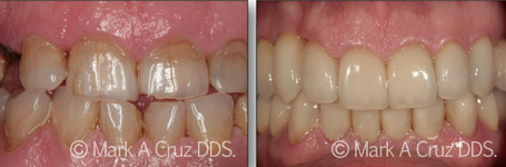 Cosmetic Dentistry Dana Point - Cosmetic Dentistry 06