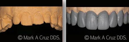 Cosmetic Dentistry Dana Point - Cosmetic Dentistry 02
