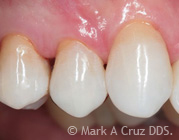 Gold Tooth Replacement Dana Point - Gold in Restorative Dentistry 05