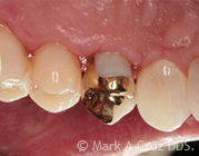 Gold Tooth Replacement Dana Point - Gold in Restorative Dentistry 06