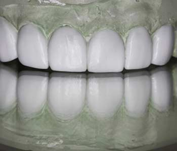 Wax Up for Dental Treatment