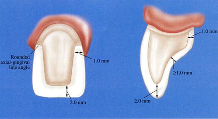Restorative Dentistry Laguna Niguel - Case 1