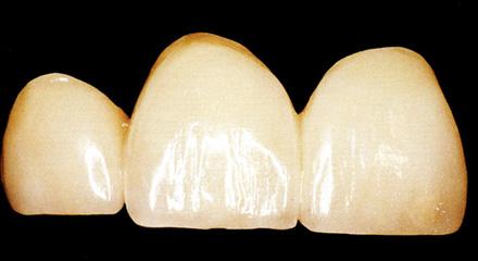 Restorative Dentistry Laguna Niguel - Case 10