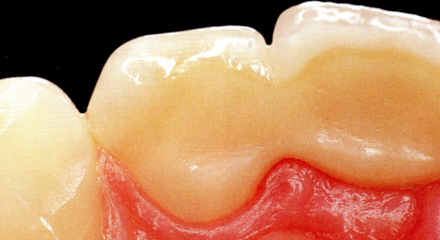 Restorative Dentistry Laguna Niguel - Case 11