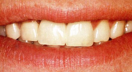 Restorative Dentistry Laguna Niguel - Case 13