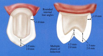 Restorative Dentistry Laguna Niguel - Case 2