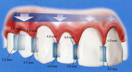 Restorative Dentistry Laguna Niguel - Case 3