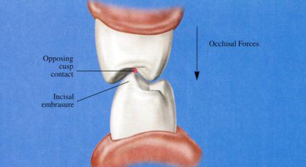 Restorative Dentistry Laguna Niguel - Case 4