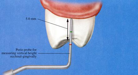 Restorative Dentistry Laguna Niguel - Case 5