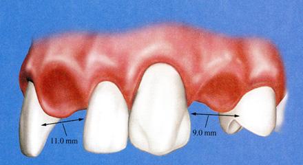 Restorative Dentistry Laguna Niguel - Case 6