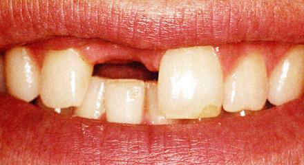 Restorative Dentistry Laguna Niguel - Case 7