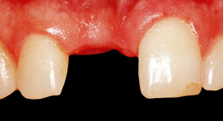Restorative Dentistry Laguna Niguel - Case 8
