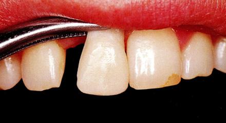 Restorative Dentistry Laguna Niguel - Case 9