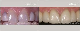 Dentist Laguna Niguel - Before After 05