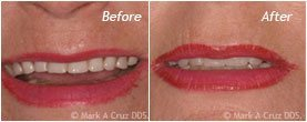 Dentist Dana Point - Before After 06