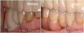 Dentist Laguna Niguel - Before After 08