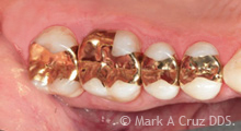 Gold Tooth Replacement Dana Point - Replacement of failing composite fillings 02