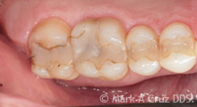 Gold Tooth Replacement Dana Point - Replacement of failing composite fillings 01