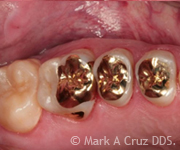 Gold Tooth Replacement Dana Point - Gold in Restorative Dentistry 02