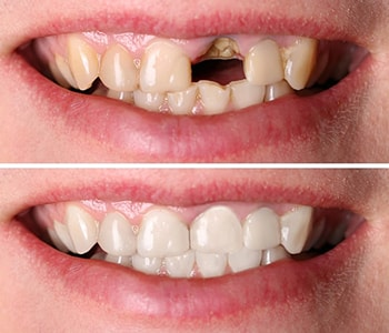 Dana Point, CA dentist explains advantages of a gold tooth crown