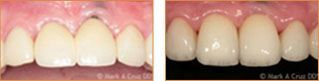Dental Implants Dana Point - Implants Case 01
