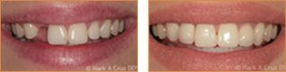 Dental Implants Dana Point - Implants Case 02
