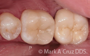 Cosmetic Dentistry Dana Point - Restoration of 1st molar with ceramic onlay