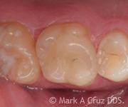 Cosmetic Dentistry Dana Point - Cosmetic Dentistry 10