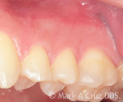 Cosmetic Dentistry Dana Point - Cosmetic Dentistry 11