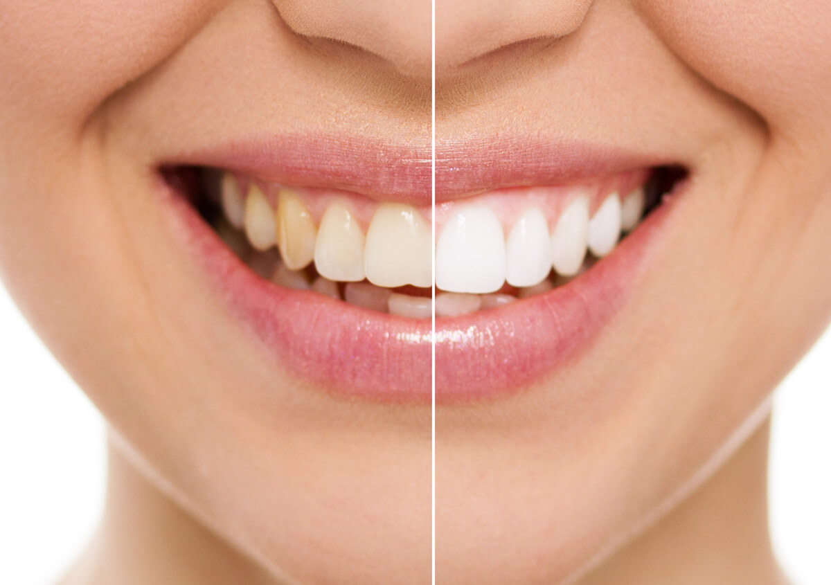 Advantages of teeth whitening in Dana Point CA