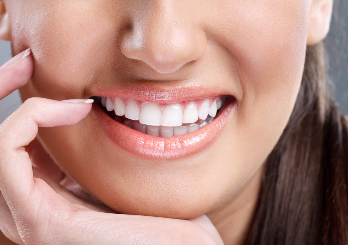 Laguna Niguel Teeth Whitening